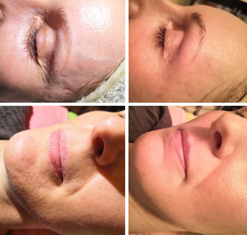 Kombinált bőr kezelési eredménye