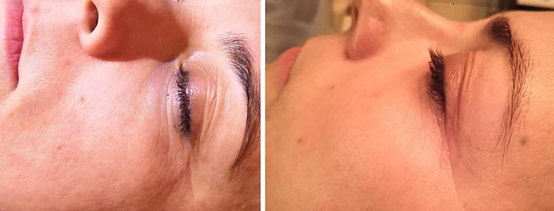 Kombinált típusú bőr kezelés előtti/utáni állapotát láthatjuk.