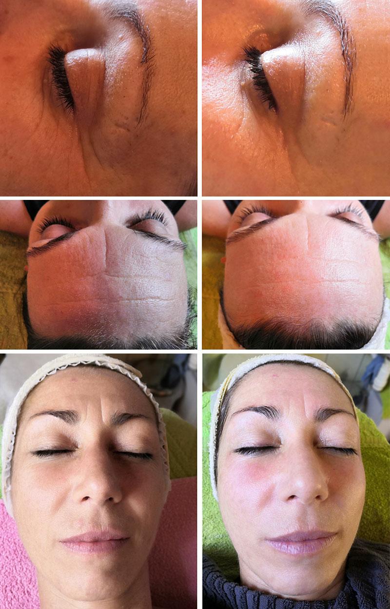 Kombinált bőr kezelése