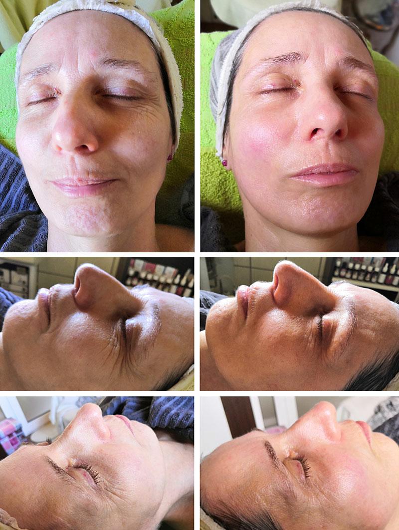 Száraz, felszíni és mélyrétegi vízhiányos bőr kezelés előtti és utáni állapot