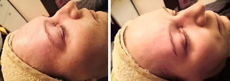 Érzékeny bőr, illetve normál bőrtípus kezelés előtti és utáni állapot