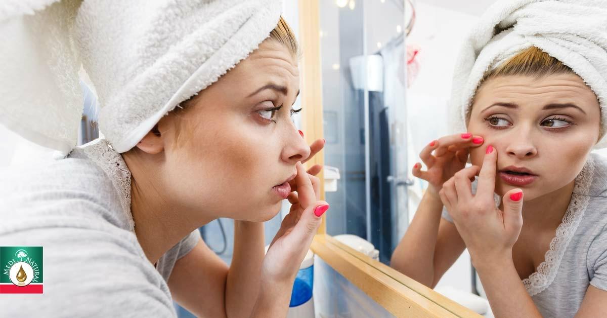 A zsíros bőr segélykiáltása – halld meg és tégy ellene!