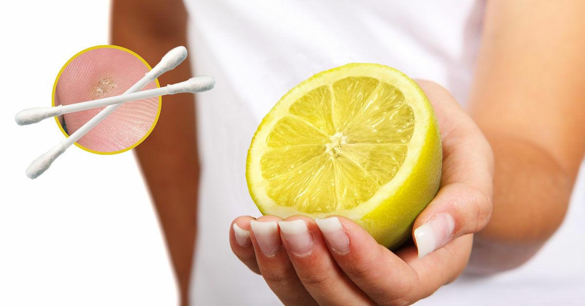 szemolcs-ellen-citromolaj